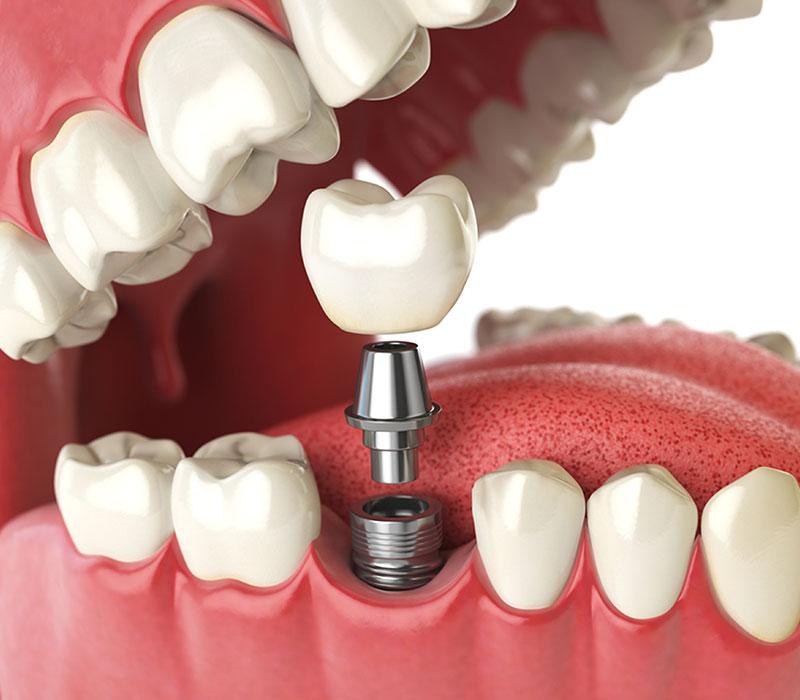 dental implants in saskatoon