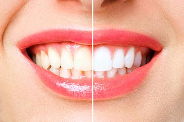 teeth whitening in saskatoon